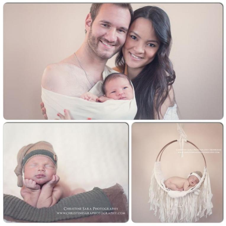 nick-vujicic-baby-picture